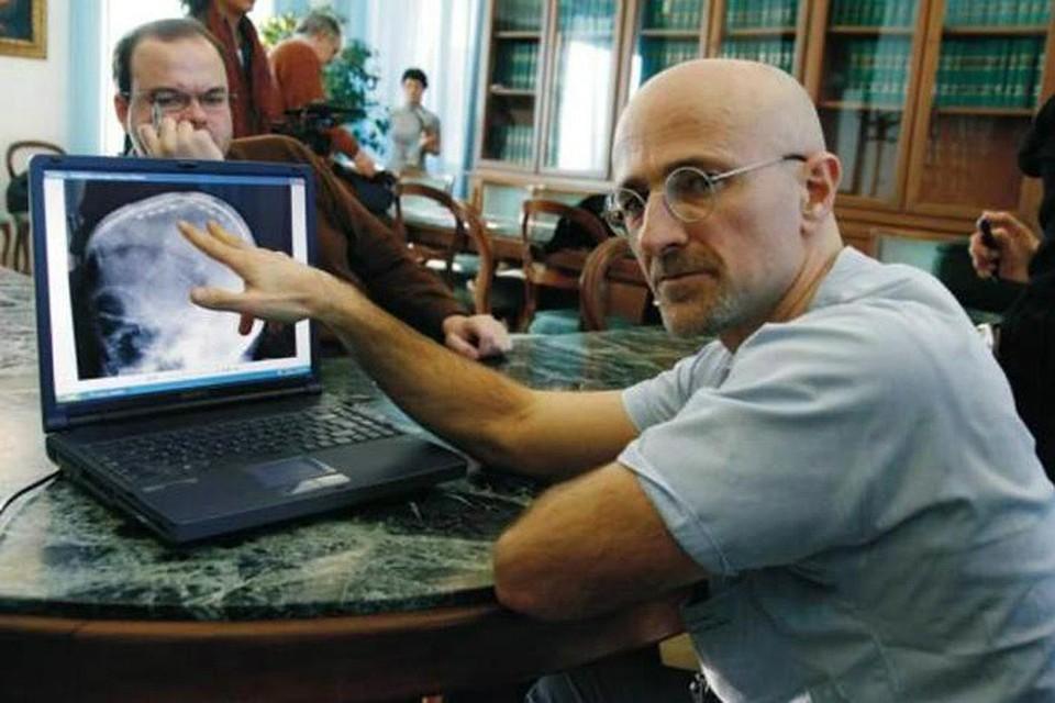 Сержио Канаверо пересадка головы фото