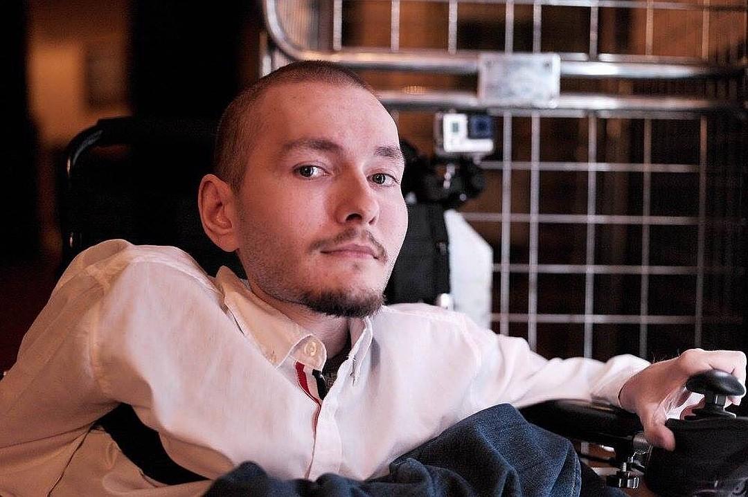Валерий Спиридонов пересадка головы фото