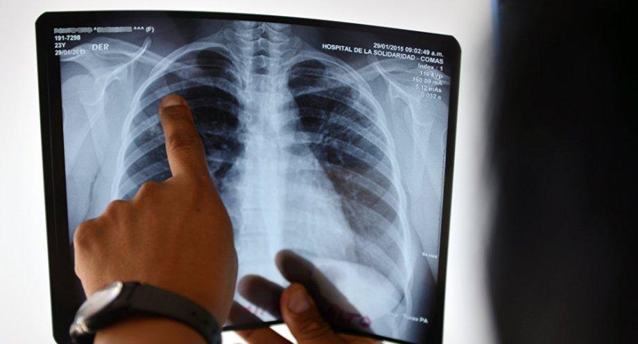 рентген легких фото