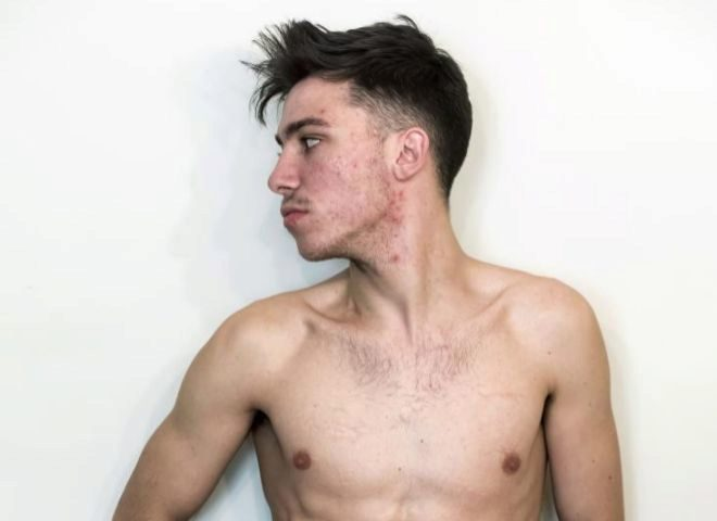 парню пересадили 4 органа Испания фото