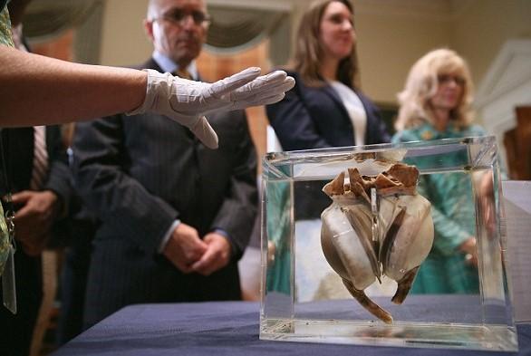 пересадка первого искусственного сердца картинка